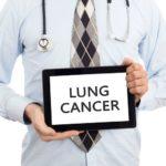 肺がんの治療とその治療費|がん治療を知るシリーズ2