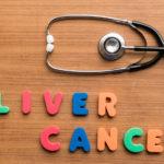 肝がんの治療とその治療費|がん治療を知るシリーズ3